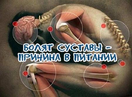 Рентгенологическая Диагностика Ревматоидного Артрита